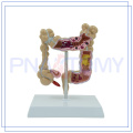 PNT-0745 Diseased large intestines