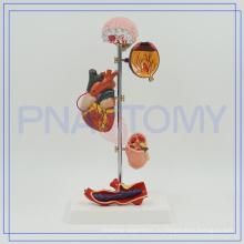 ПНТ-0759 модели медицинской гипертонии,высокого кровяного давления модель