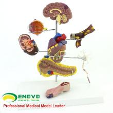 HEART22 (12555) Medizinisches anatomisches menschliches Diabetes-Modell