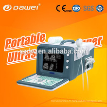 Prix de machine d'échographie portative médicale pour l'équipement d'ultrason d'échocardiographie 2D de DW-3101A Chine dernière version USG