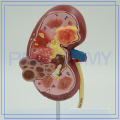 PNT-0739 cheap price Kidney with Adrenal Gland model factory