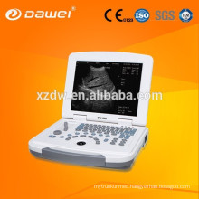 DW-500 / DW-580 portable ultrasound diagnostic system with cheap price ultrasound scanner for sale