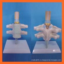Яркий человеческий шейный позвонок, анатомическая модель спинного нерва