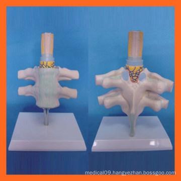 Vivid Human Cervical Vertebra, Spinal Nerve Anatomical Model