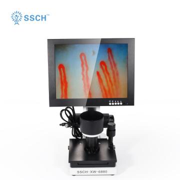 Digital Microscope Terminal Microcirculation Observation
