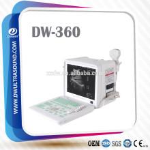 equipo de ultrasonido portátil y escáner de diagnóstico por ultrasonidos DW360
