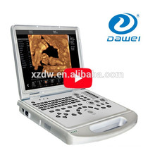 4D function laptop color doppler ultrasound machine price