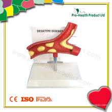 Modelo de doença de Desktype (PH6058)