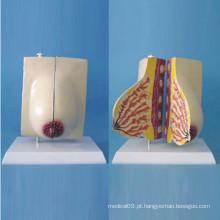 Modelo anatômico de mamas grávidas para ensino médico (R150107)