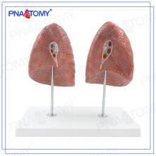 PNT-0475 modelo humano do modelo de pulmão esquerdo e direito