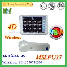 MSLPU37M 2016 Neue Ankunft !!! 4D Wireless Blasenscanner Protable Blasenscanner Ultraschallgerät