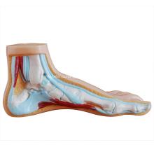 Нормальной Стопы/Плоскостопие/Арочные Ноги