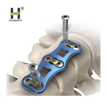 Cervical Vertebra Anterior Titanium Plates Series