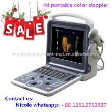 MSLCU28i Fabrikpreis !! 4d tragbarer Farbdoppler Ultraschall mit konvexer Sonde, Linearsonde und 4d Volumensonde