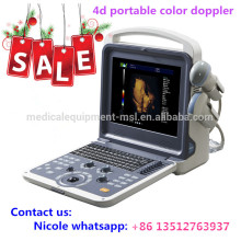 MSLCU28i Factory price!! 4d portable color doppler ultrasound with convex probe, linear probe and 4d volume probe