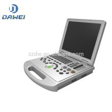 DW-C60plus 4D function laptop color doppler ultrasound machine