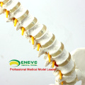 SPINE11 (12383) Medical Anatomy Science Professional Life-Size Vertebral Column with Pelvis and Femur Heads