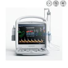 Portable Diagnostic Doppler Digital Color Ultrasound