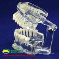 DENTAL11 (12571) humano adulto tamaño natural transparente estándar dental enseñar modelos