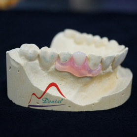Valplast And TCS Flexible Partial Denture