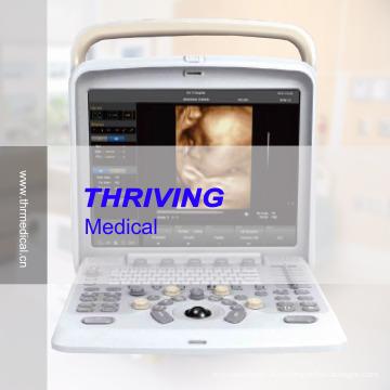 Портативный цветной допплеровский ультразвуковой сканер (THR-CD005Q)
