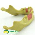 IMPLANT08(12619) Oral Implant Dental Training Model for Missing Dental Implants