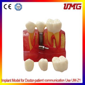Removable Frasaco Teaching Teeth Model/Dental Teeth Model/Typodont Model