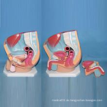 Menschliches Abdomen Beckenhohlraum Anatomisches Modell für medizinische Lehre (R110210)