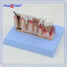 Modelos de dientes dentales PNT-0528cc y modelo de comunicación de implantes para dentista
