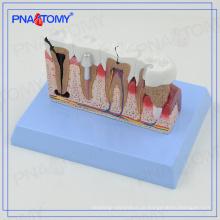 Modelos de dentes dentais PNT-0528cc e modelo de comunicação de implantes para dentista