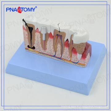 PNT-0528cc Dental Teeth models and Implants Communication Model for Dentist