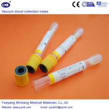 Vacuum Blood Collection Tubes Sst Tube (ENK-CXG-023)