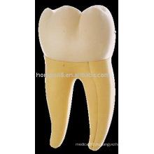 Первая мольная модель нижней челюсти