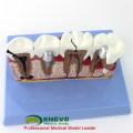 Оптовая зубного имплантата 12625-1 больших размеров зубной имплантат Дидактические медицинской модели