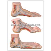 ISO Set von normalem Fuß, flacher Fuß und gewölbter Fußmodell