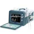 2D protable ultrasound machine price & best price for mobile ultrasonic machine