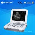 Notebook Portable Ultrasound Scan Machine Laptop Diagnostic Ultrasound for Pregnancy