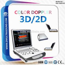 ДГ-C60PLUS 3Д/2D Цвет Доплеровский ультразвуковой диагностики Эхо машина