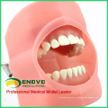 Продать 12557 устное Моделирование практика Фантом системы головки для стоматологической школы