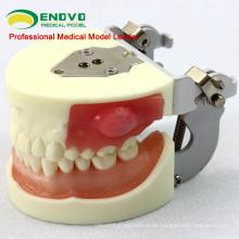 VERKAUF 12605 Inzision / Eiterentfernung Patientenschulung Dental-Modell
