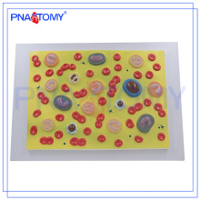 PNT-0421 L'anatomie du corps humain enseignement biologique sida modèle de cellules sanguines