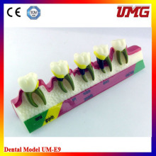 Education Equipment Periodontal Diseases Demonstration Model