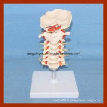 Modèle cervical à taille humaine avec disques et modèle d'anatomie des nerfs spinaux