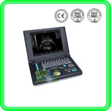 MSLVU06 laptop vet ultrasound scanner