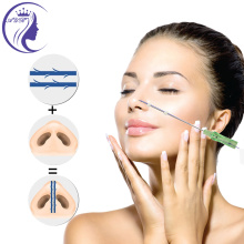 Slimmer Nose Pdo Thread Lifting