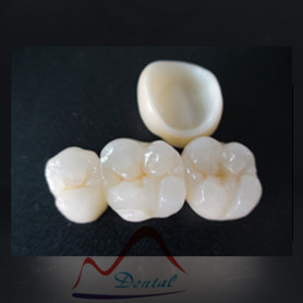 CAD/CAM dental zirconia/ high quality