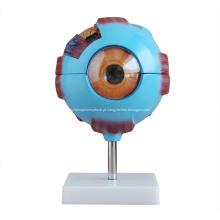 Modelo de olho gigante para ensino médico
