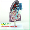 LUNG04 (12501) Lado do Modelo Anatômico do Pulmão Doente, 2/3 Tamanho da Vida Modelo Patológico do Pulmão