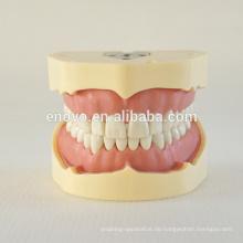 BF Typ Schraubenzähne Dental Studie Modell 13005, Ersatz Zähne Anzug für Frasaco Kiefer