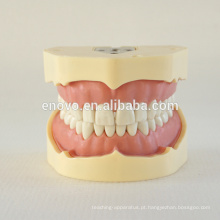 BF Tipo Screw Teeth Dental Study Model 13005, Terno de dentes de substituição para Frasaco Jaw